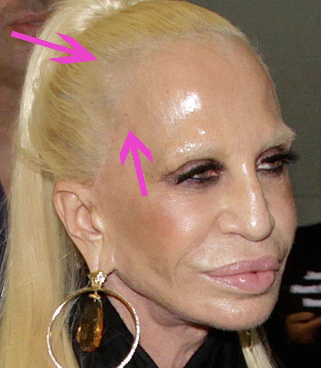donatella plastic surgery face