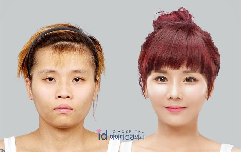 south korea plastic surgery show