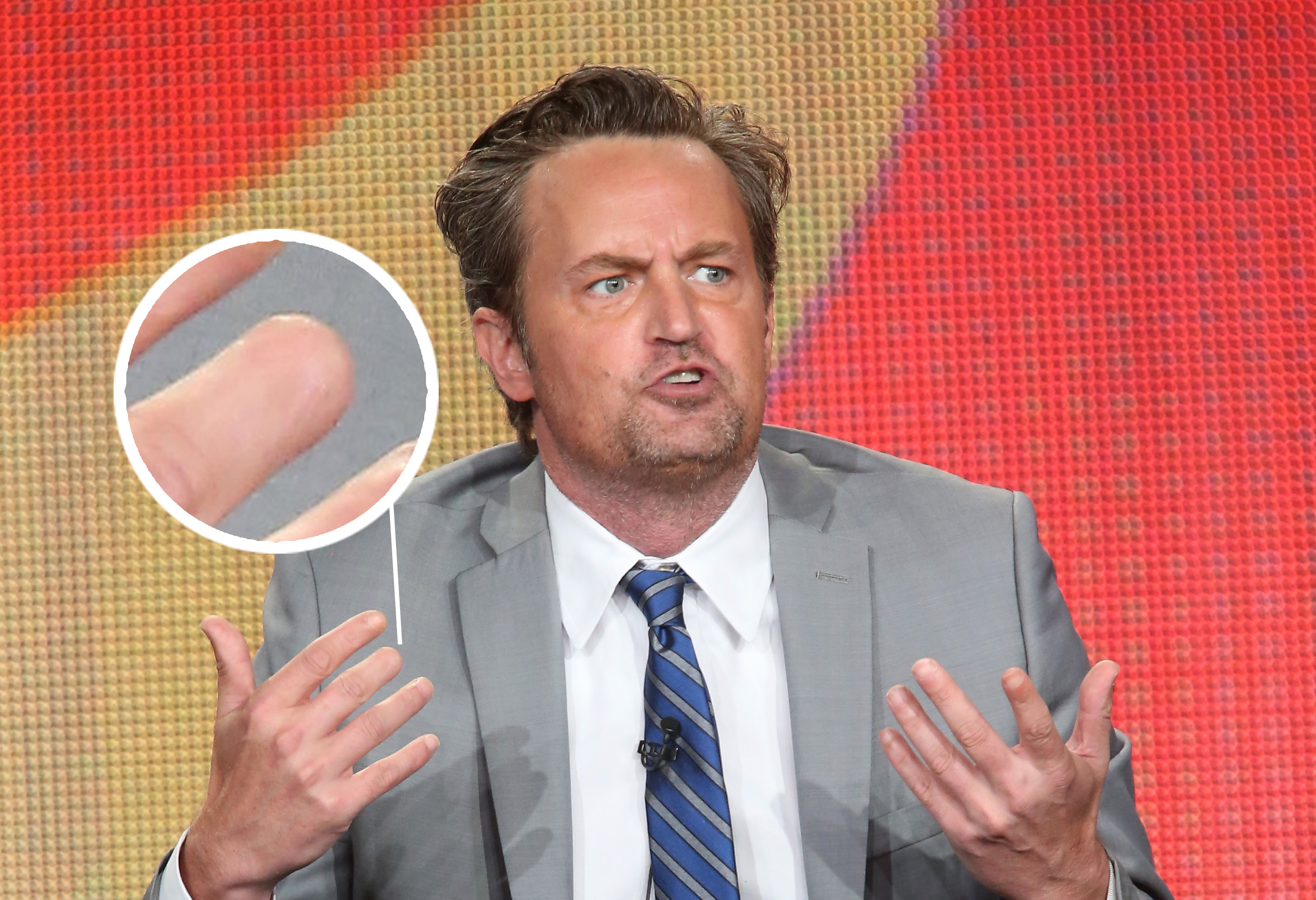Vince Vaughn Thumb >> Matthew Perry Vince Vaughn And More Stars Who Are Missing
