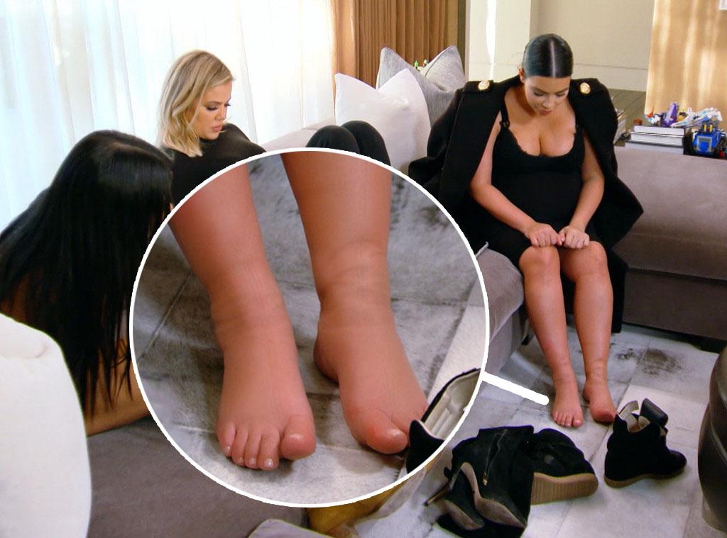 kim kardashian swollen feet