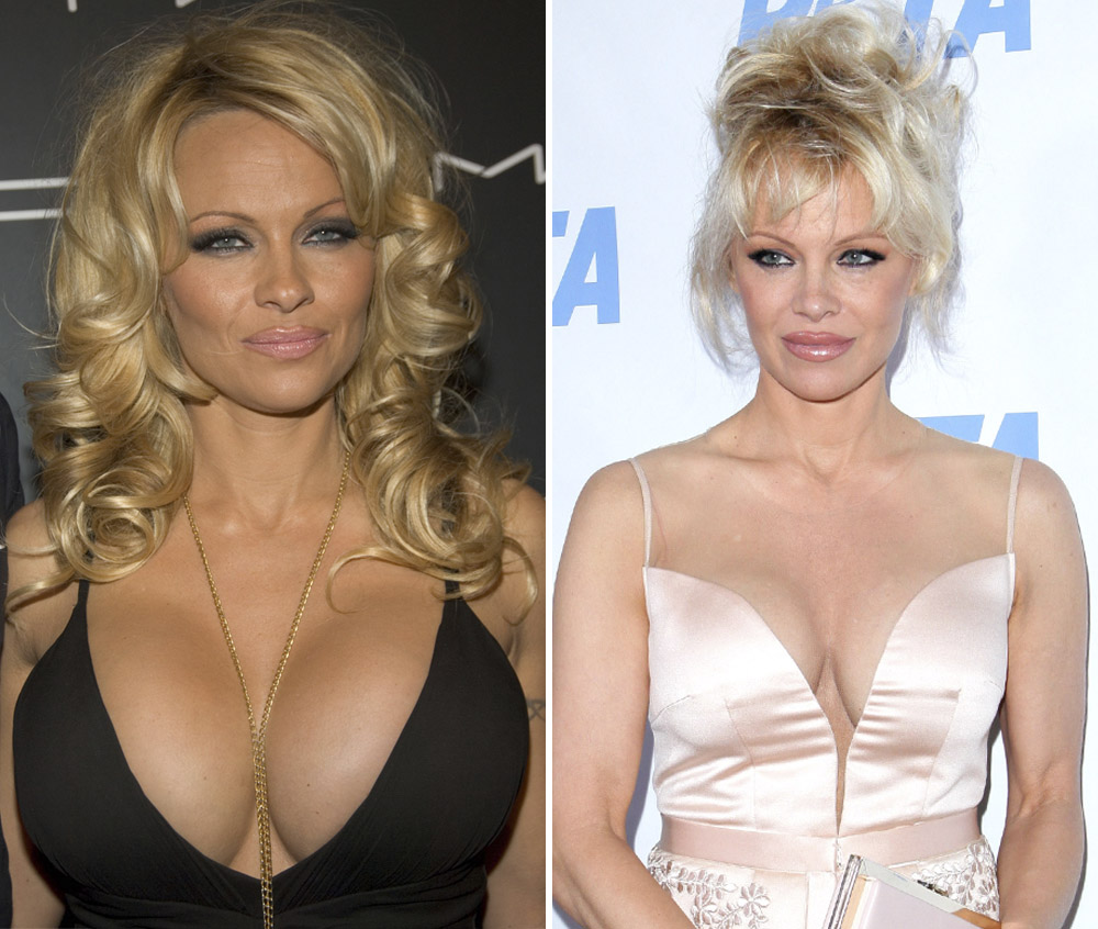 Crystal Hefner, Pamela Anderson, and More Stars Who Had Their Breast  Implants Removed