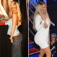 jenna-jameson-before-and-after-1
