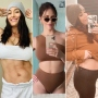Celebrity Post-Baby Bodies — Stretch Marks, Bloated Bellies, and More