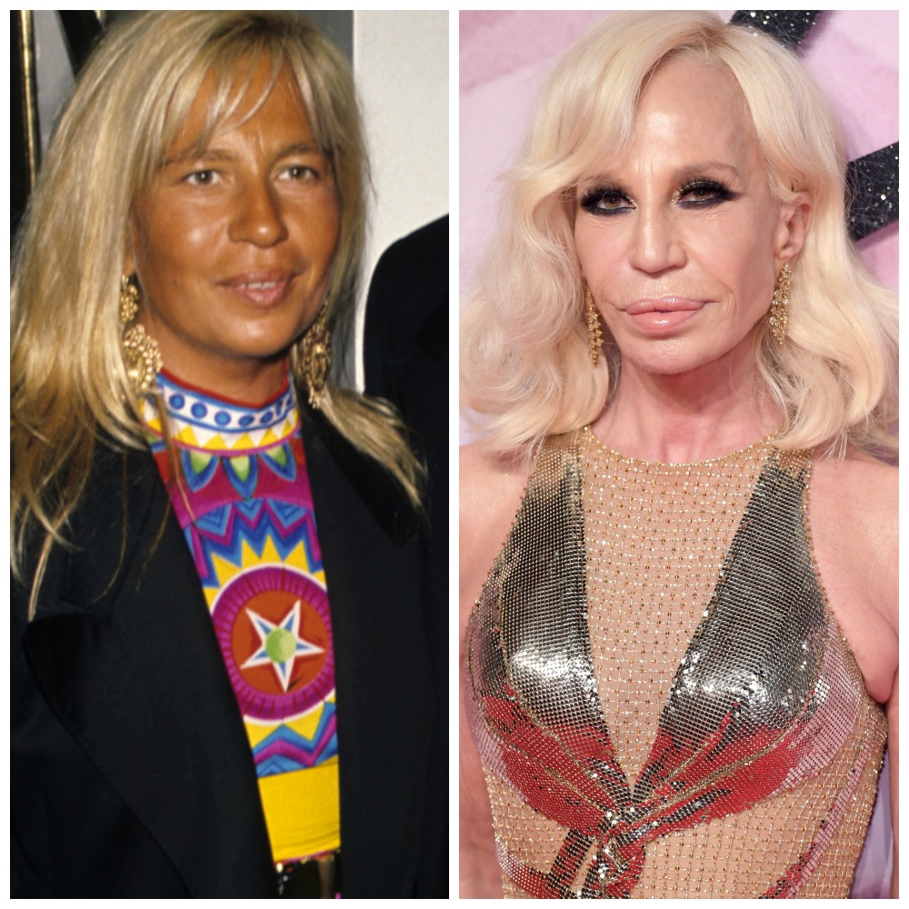 Plastic Surgery Gone Wrong — Celebs Who Regret Going Under