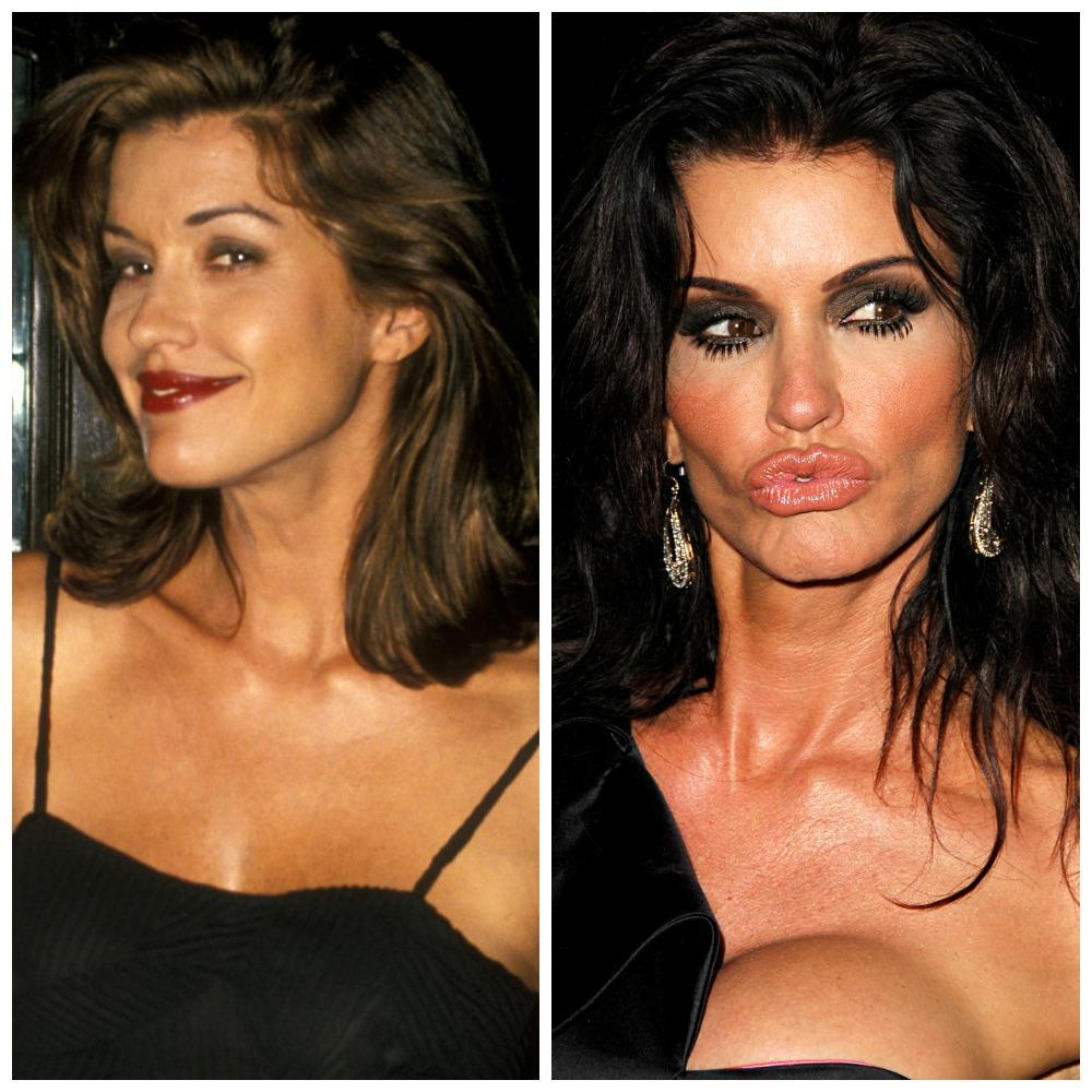 Nancy Pelosi Plastic Surgery Before & After | Plastic ...