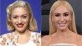gwen-stefani-before-after-plastic-surgery