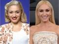 gwen-stefani-before-after-plastic-surgery