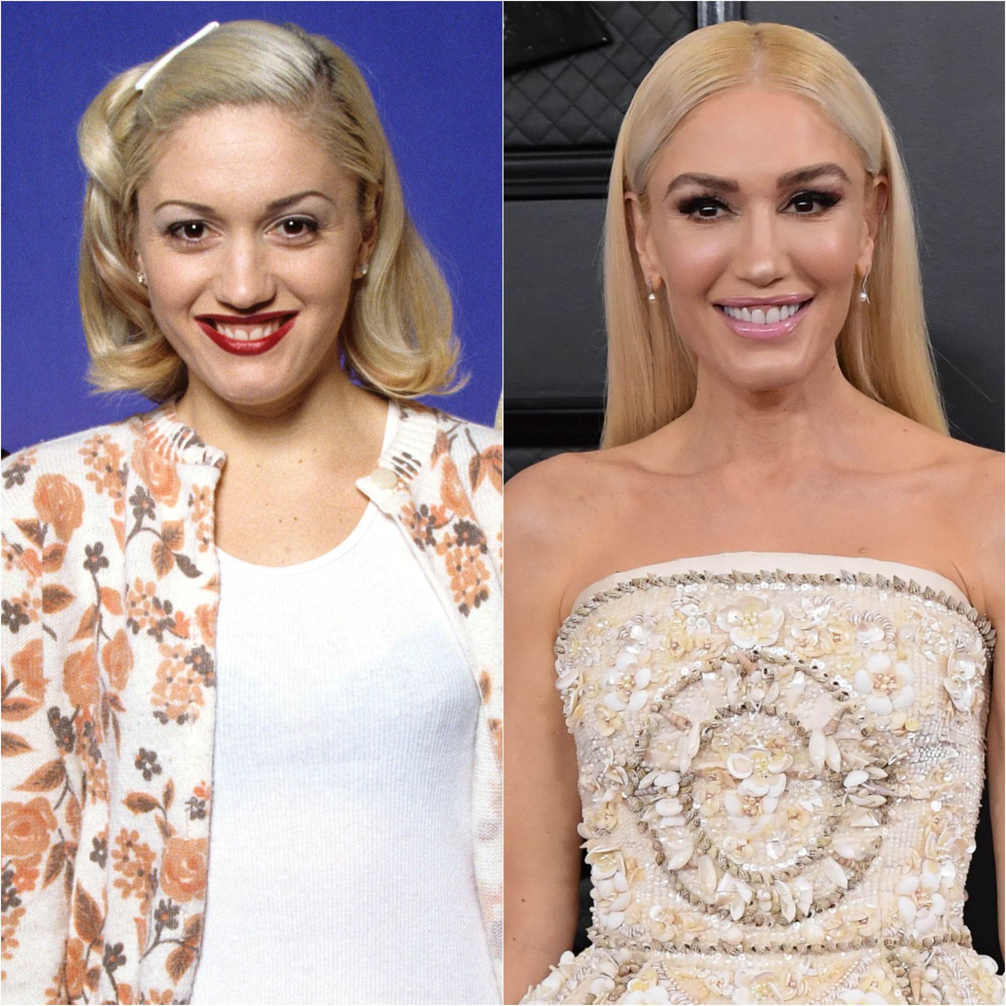 Has Gwen Stefani Had Plastic Surgery? See What Experts Think