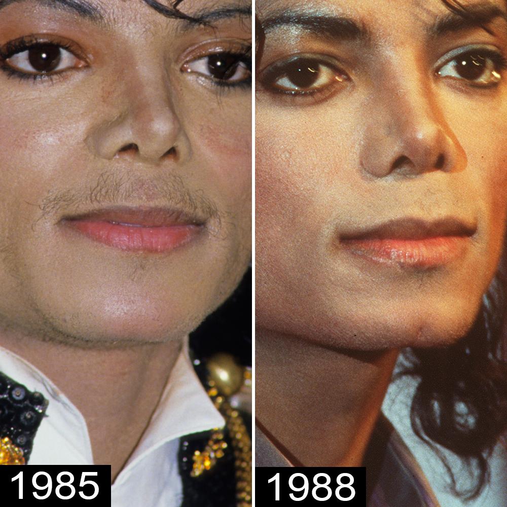 Michael Jackson's Plastic Surgery — See His Transformation