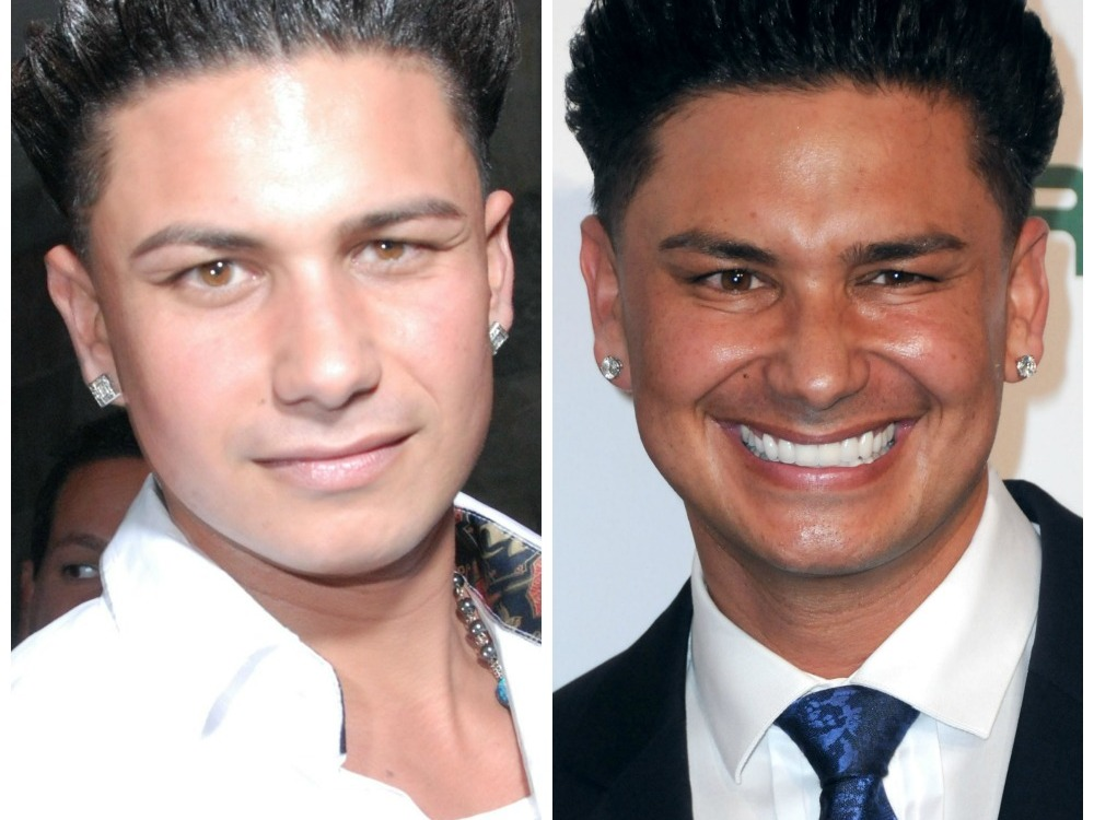 pauly d jersey shore face transformation