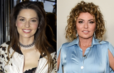 Shania Twain Plastic Surgery — Did the Country Star Go Under the Knife?