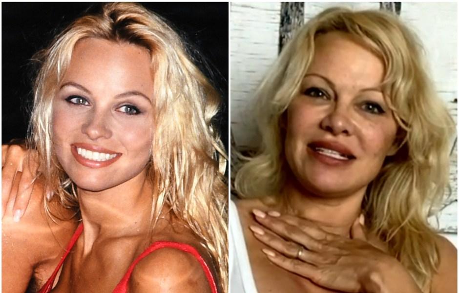 pamela-anderson-plastic-surgery
