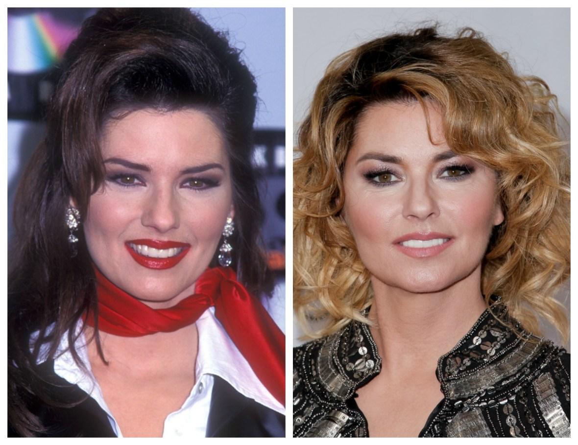 shania twain plastic surgery 1996 vs. 2017  getty