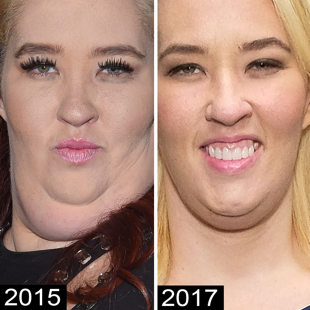 mama-june-chin-again