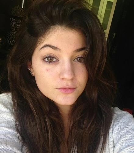 kylie freckles younger