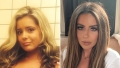 Brielle Biermann Transformation Plastic Surgery