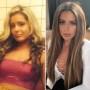 Brielle Biermann Transformation Plastic Surgery