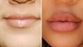 khloe-kardashian-lips
