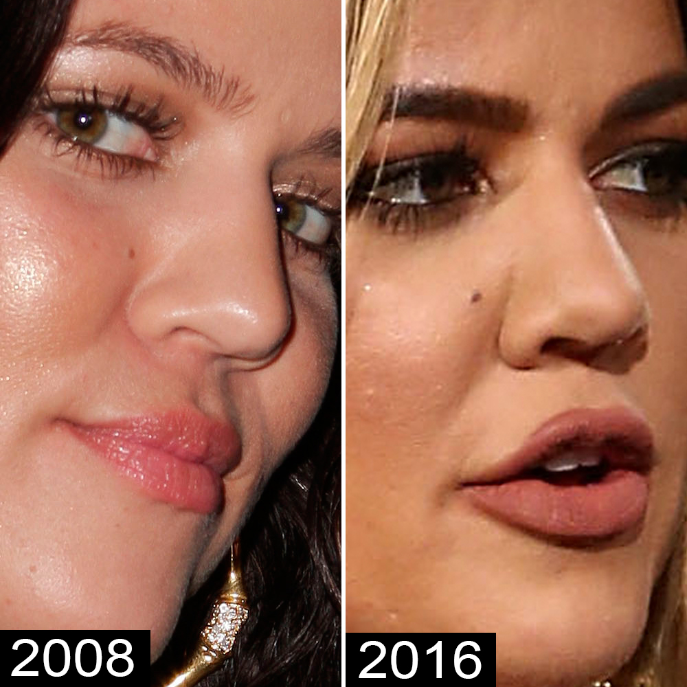 Bbw Big Asshole khloé kardashian before and after: see her complete