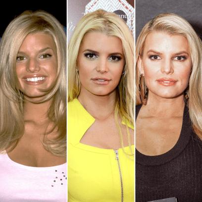Did Jessica Simpson Get Plastic Surgery? Transformation Photos