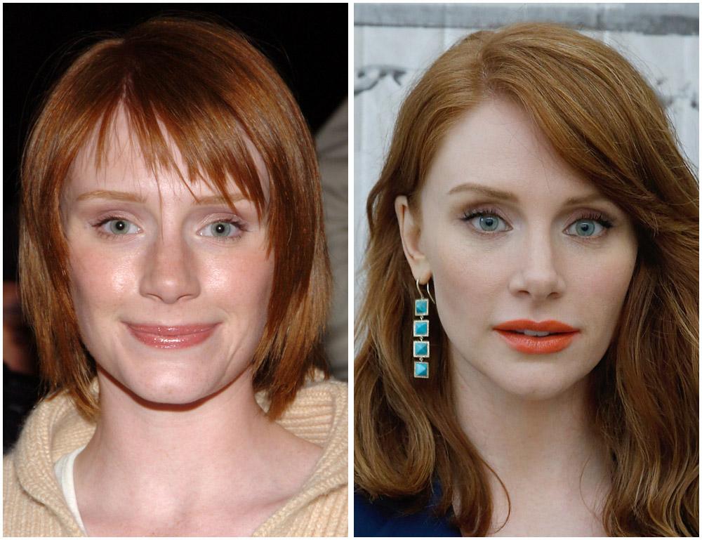 Nicole Kidman Gets a Facelift? Our Plastic Surgery Experts