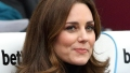 kate-middleton-botox