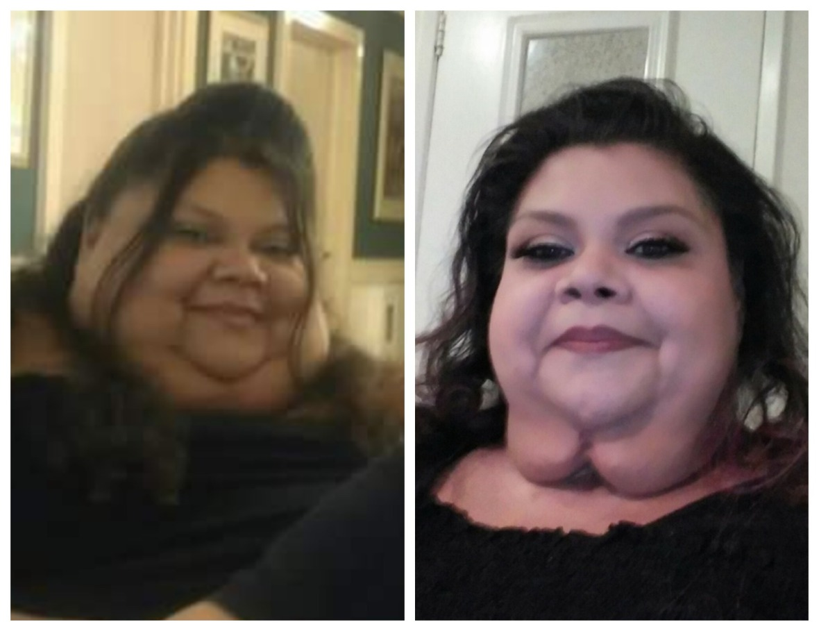 lupe 'my 600-lb life' before and after facebook