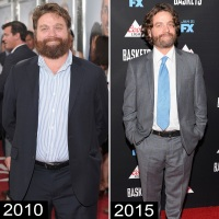zach-galifianakis-weight-loss