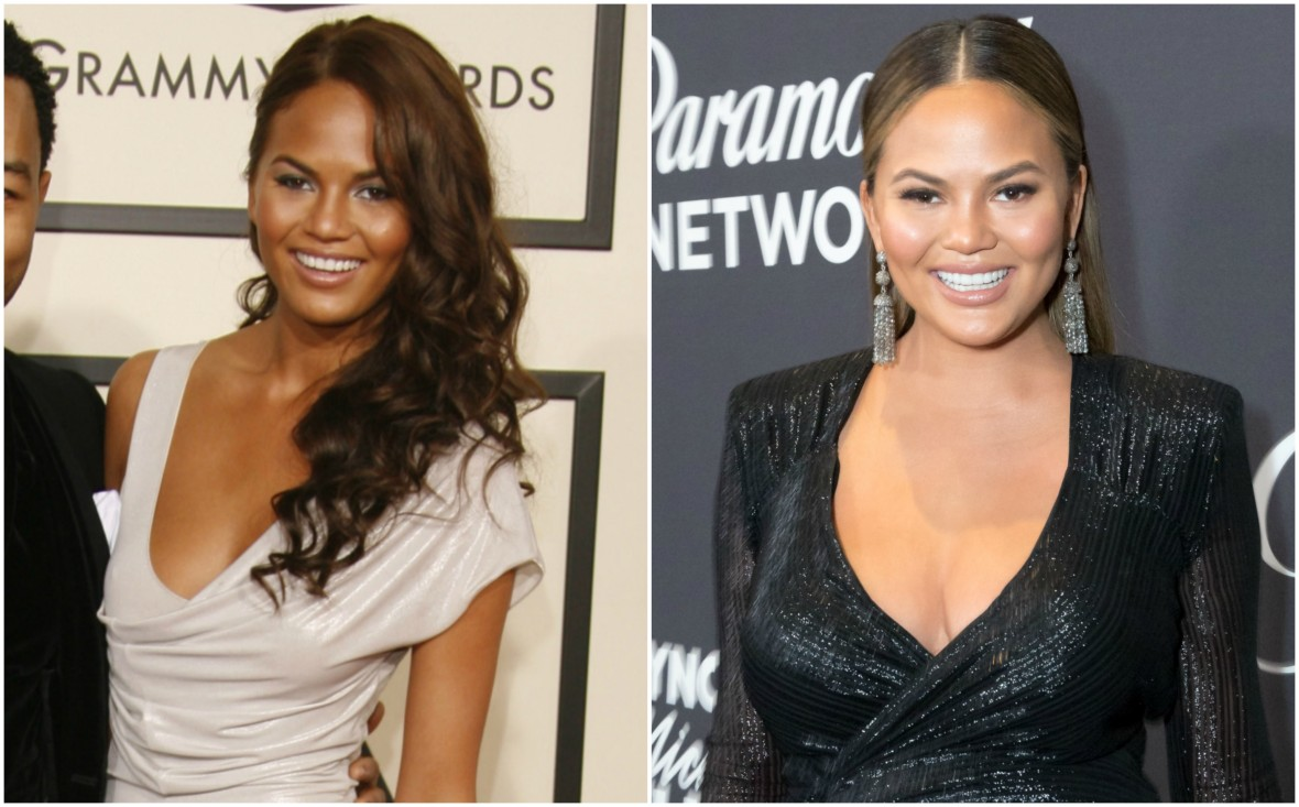 chrissy teigen before and after