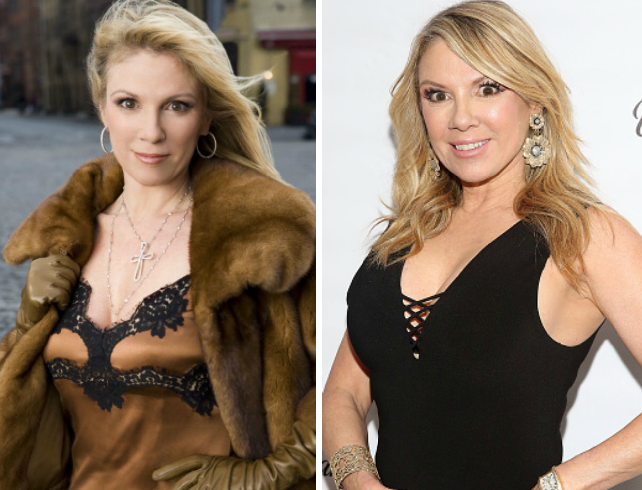 ramona singer plastic surgery then and now
