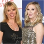 ramona-singer-transformation-plastic-surgery-rhony