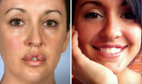 botched-transformations-then-and-now-11