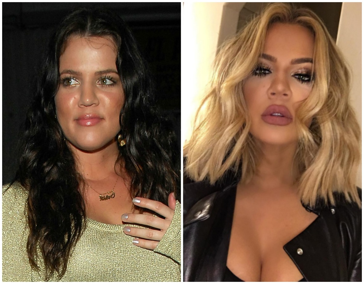khloé kardashian before and after face