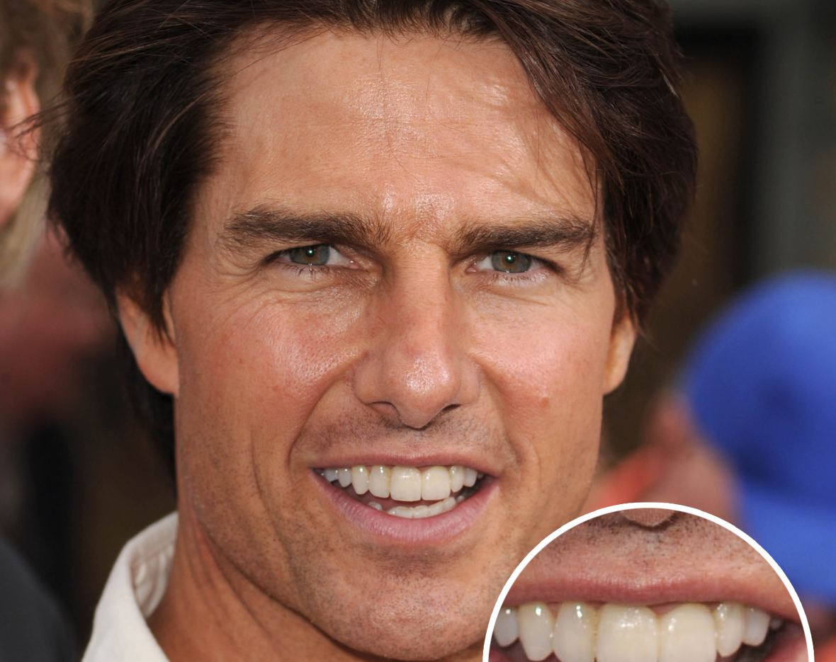 Tom Cruise S Middle Tooth The Story Behind His Smile