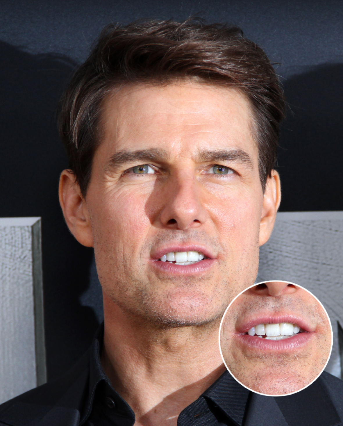 tom cruise front tooth