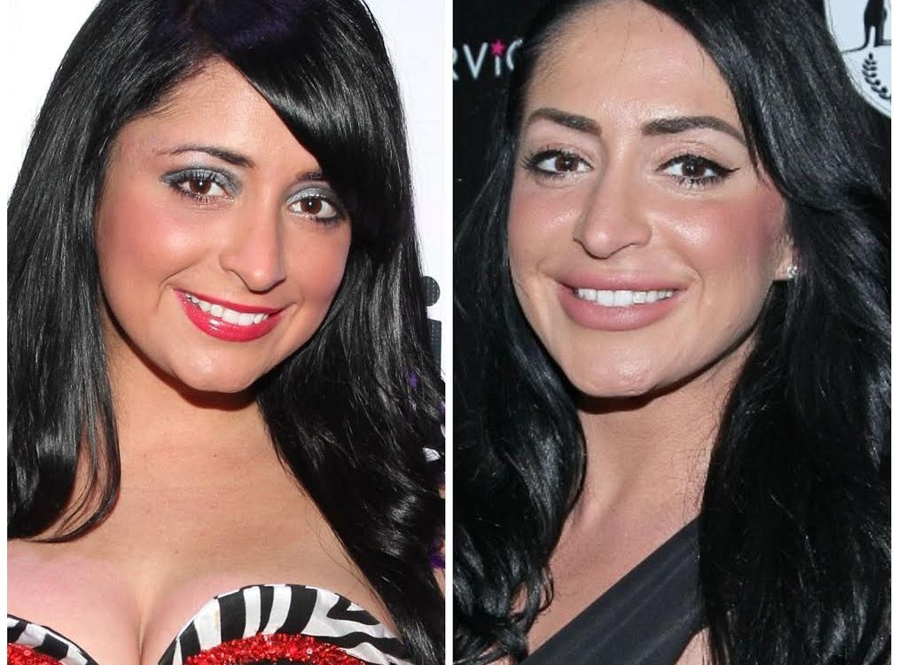 angelina pivarnick plastic surgery getty