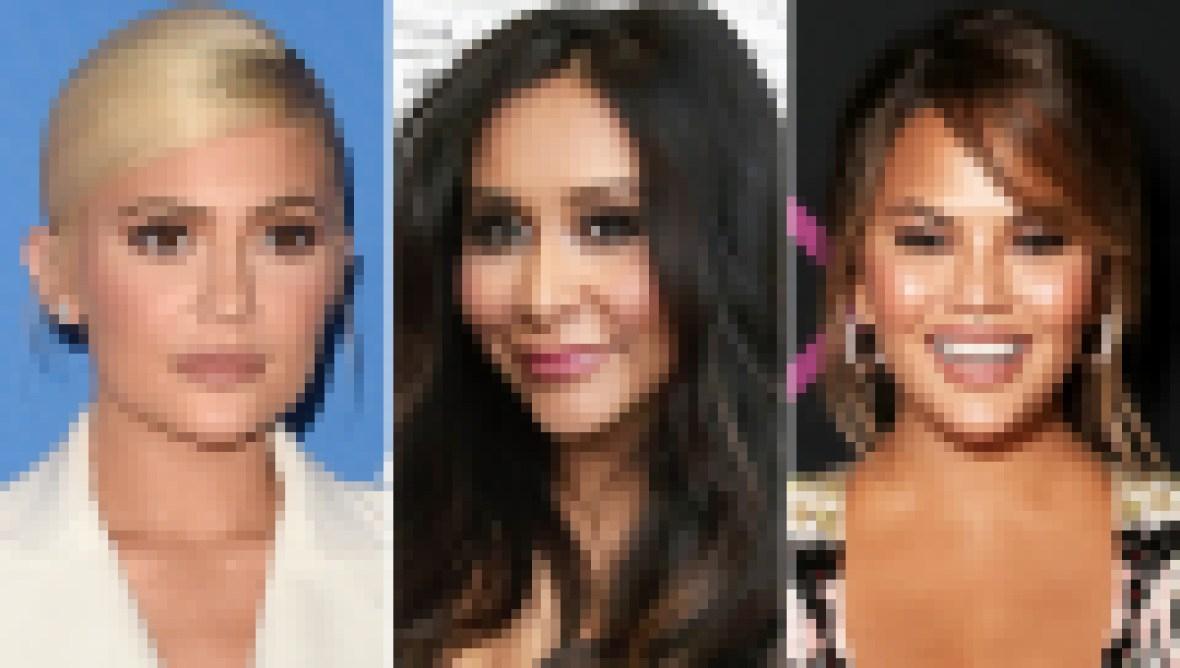 Kylie-Jenner-Snooki-Chrissy-Teigen-Plastic-Surgery