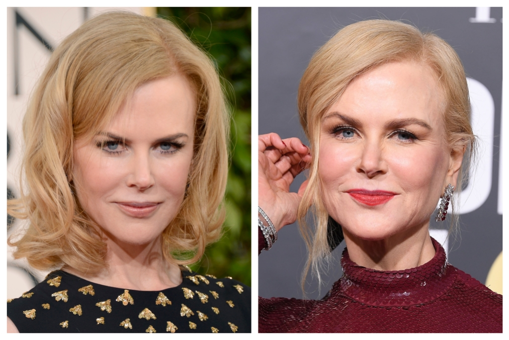 Nicole Kidman in 2010 and Nicole Kidman in 2019