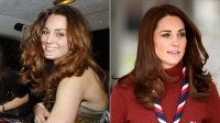 kate middleton plastic surgery doctors think she gets botox