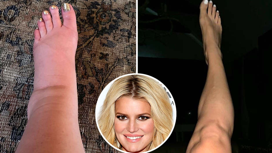 Jessica Simpson Flaunts Her Toned Ankles 2 Months After Giving Birth to Daughter Birdie