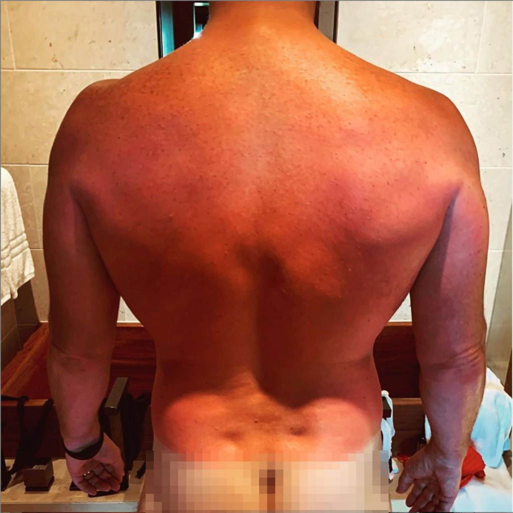 Chris Pratt's Sunburned Back and White Butt