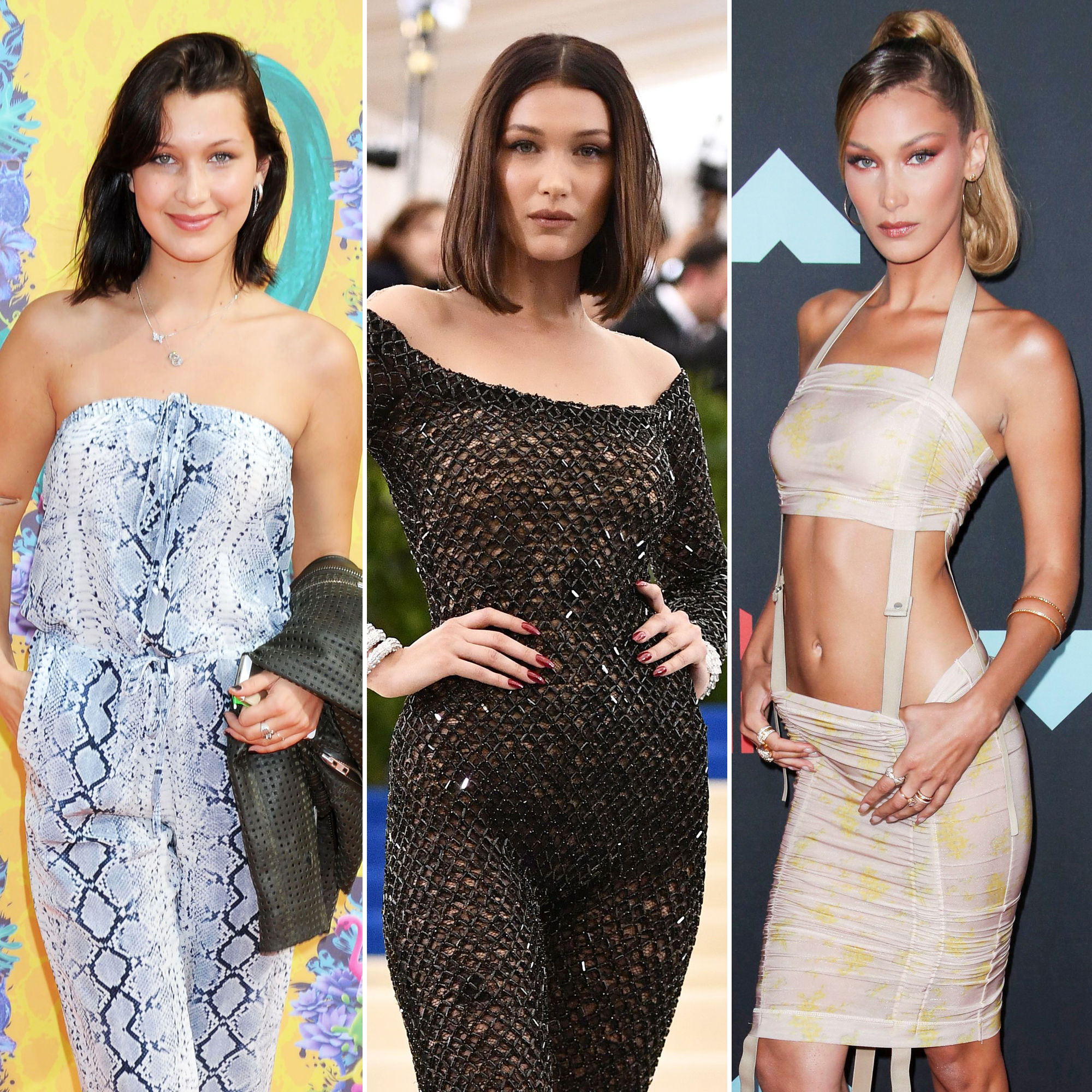 Bella Hadid Young to Now: Plastic Surgeon Comments on