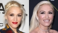 Did Gwen Stefani Get Plastic Surgery?