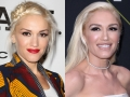 Did Gwen Stefani Get Plastic Surgery?