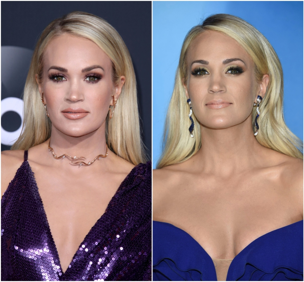 Carrie Underwood Face in 2017 vs 2019 After Fall