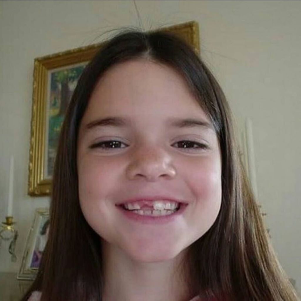 Kendall Jenner Missing a Front Tooth