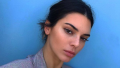 Celebrities with Freckles, Kendall Jenner