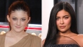 Celebrities Who Admit They've Had Work Done Over the Years — Kylie Jenner, Chrissy Teigen and More