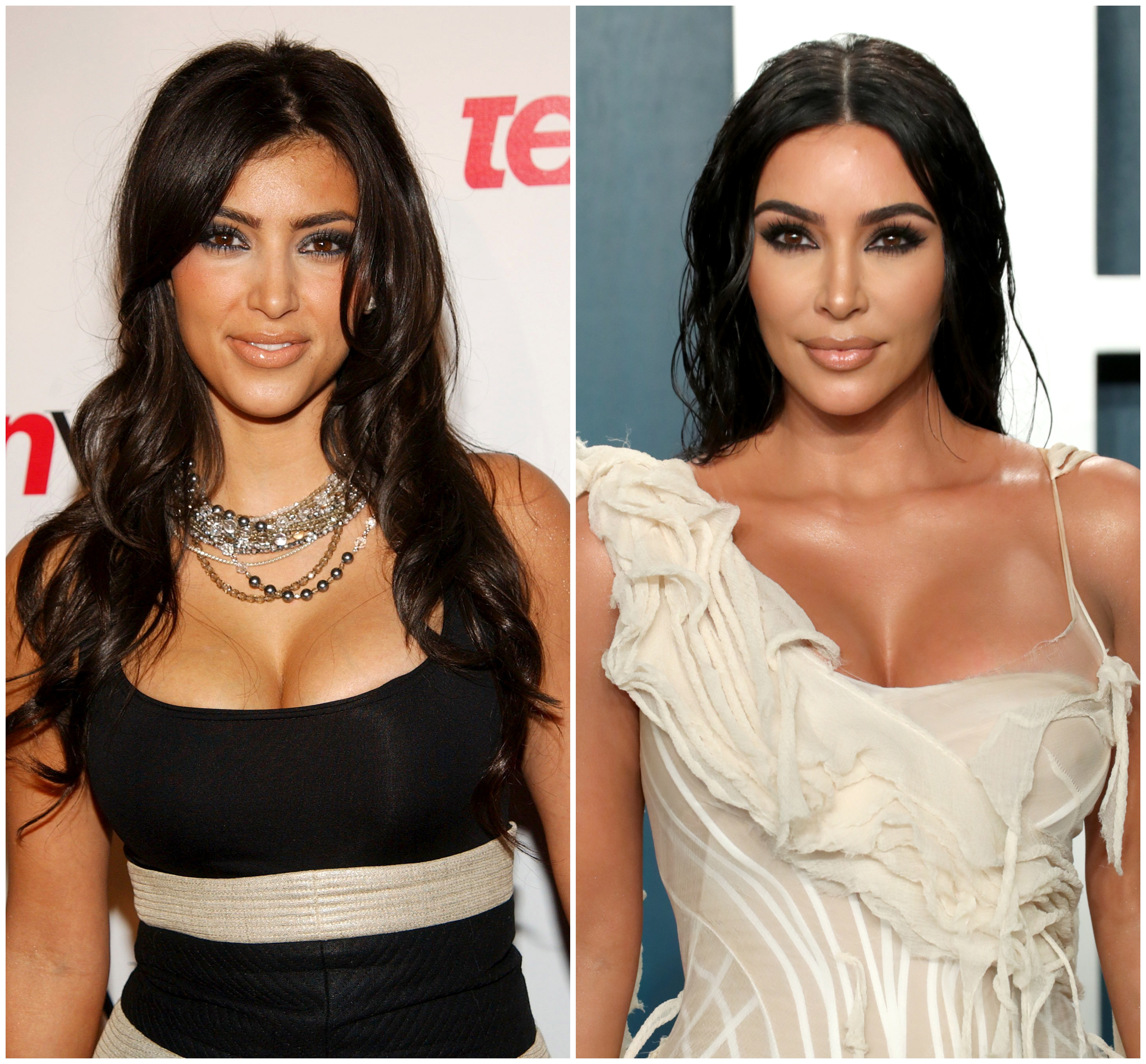 Kim Kardashian Before And After: Plastic Surgery Timeline