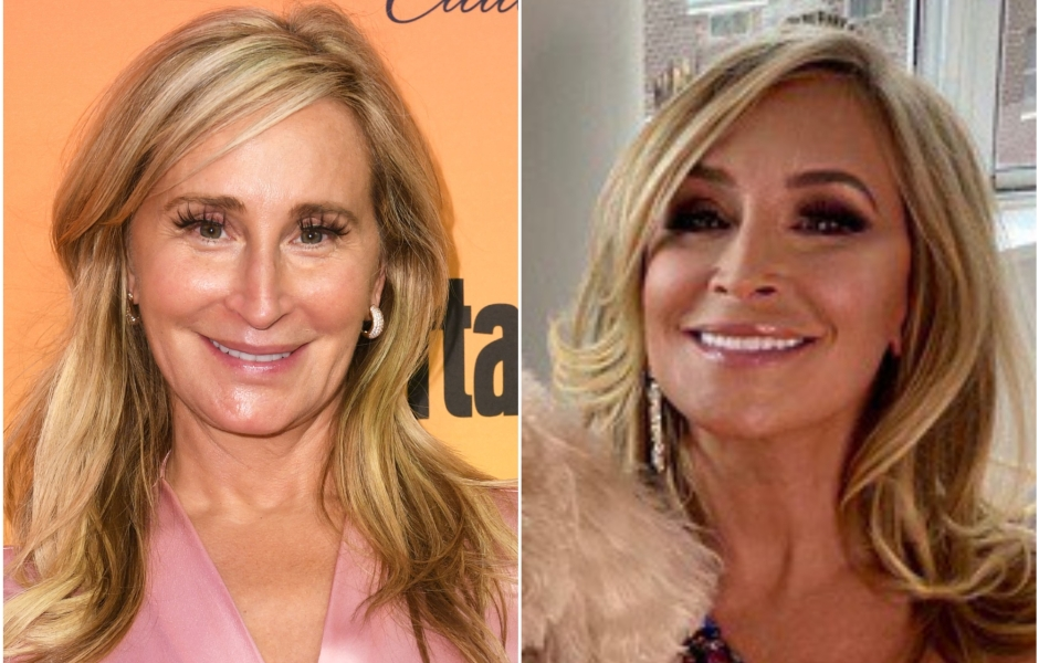 Sonja Morgan Plastic Surgery Before and After Photo